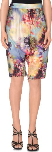 Fornarina , Trousers Bermuda Shorts Women